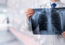 Jak walczyć z nowotworem płuc?