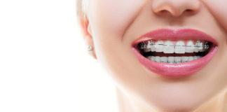 Aparat ortodontyczny - Ortodoncja